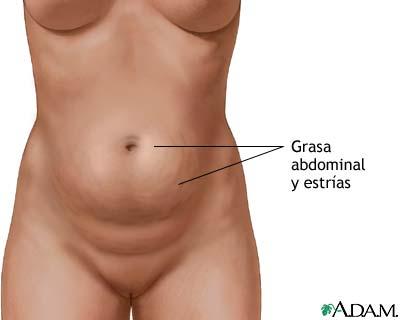 Duele el lado izquierdo en lo bajo del vientre y de la espalda