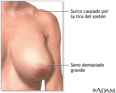 Aumentar el pene por medio de la testosterona