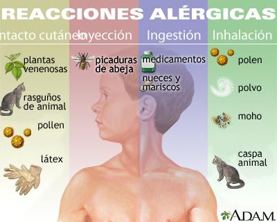 Reacciones alérgicas