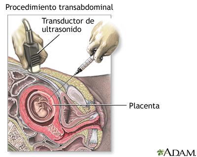 Procedimiento (segunda parte, transabdominal)