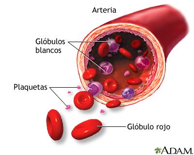 Leucemia - el A. B. C de esta enfermedad