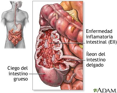 Enfermedad inflamatoria del intestino