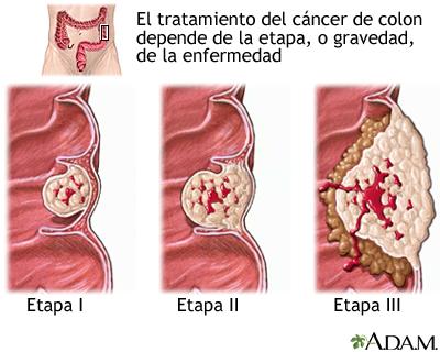 Resultado de imagen de cáncer de colon
