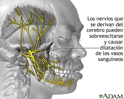 Migrana Medlineplus Enciclopedia Medica