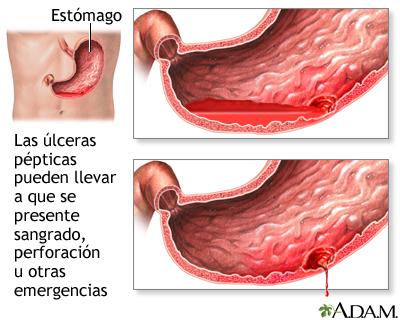 Emergencias por úlceras