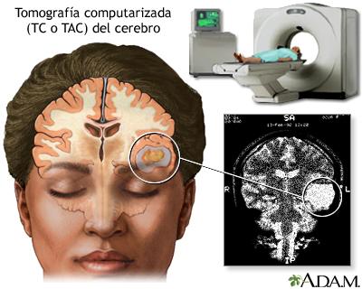 TC del cerebro