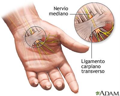 Compresión del nervio mediano