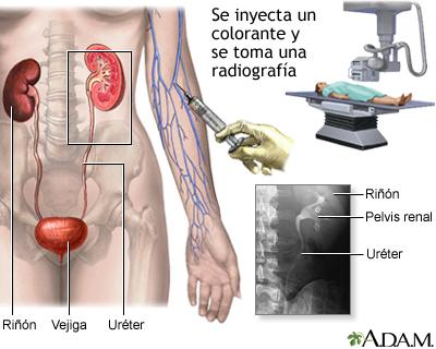Pielograma intravenoso (PIV)