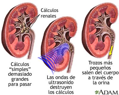 Resultado de imagen para calculos renales