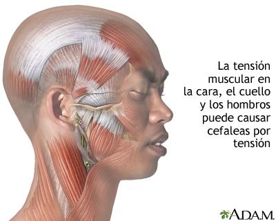 Cefalea por tensión