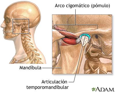 Causas de la cefalea secundaria