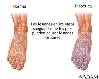 Circulación de la sangre diabética en el pie