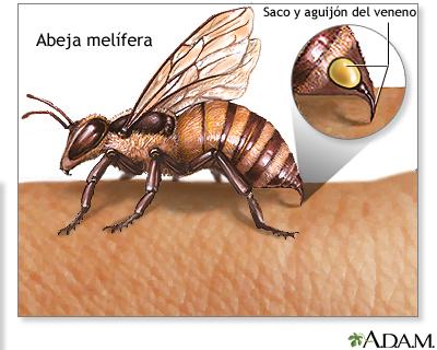 Picaduras de insectos y alergias
