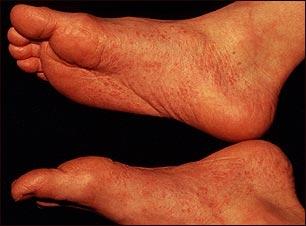 Síndrome de Reiter - vista del pie
