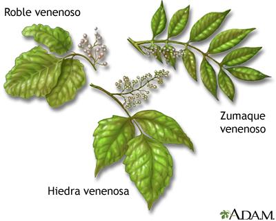 Plantas venenosas medlineplus enciclopedia m dica - Plantas venenosas de interior ...