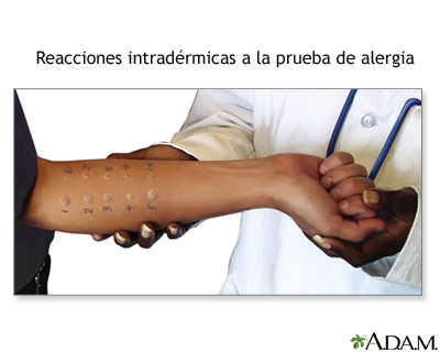 Reacciones intradérmicas a la prueba de alergia