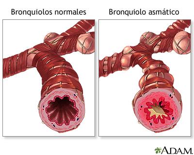 Bronquiolo normal vs. bronquiolo asmático: MedlinePlus enciclopedia ...