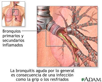 Causas de la bronquitis aguda