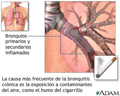 Enfermedad respiratoria causada por fumar