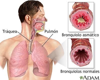 Bronquiolo asmático y bronquiolo normal