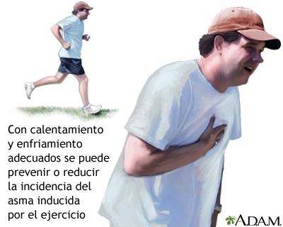 Asma inducida por el ejercicio
