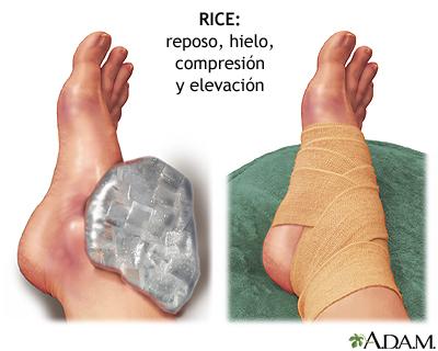 Tratamiento temprano de las lesiones