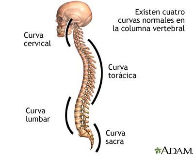 Curvaturas de la columna: MedlinePlus enciclopedia médica illustración