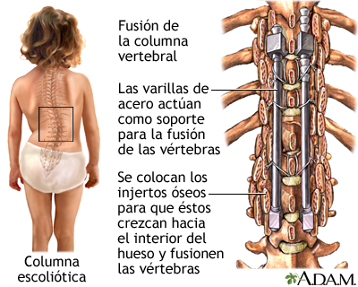 La operación sheynom el departamento de la columna vertebral