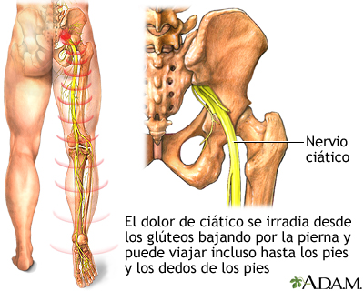 Los síndromes de la osteocondrosis lumbar