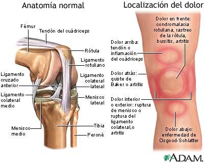 lesiones a la rodilla: