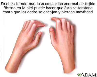 Esclerodactilia