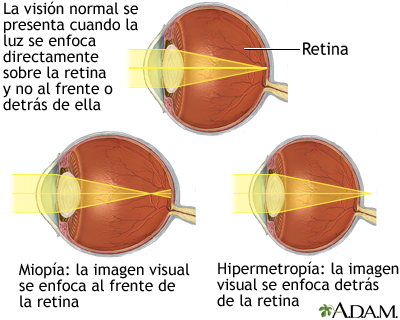 Visión normal, miopía e hipermetropía