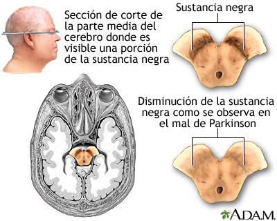Sustancia negra y el mal de Parkinson