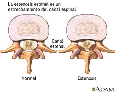 Estenosis espinal