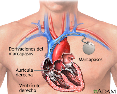 Diaphragmatic Pacemaker furthermore Sku Is 1297 besides Gemc Cardiovascular Board Review Session 3 Resident Training together with Gerry Marsden also Heart electrical control. on pacemakers part 1