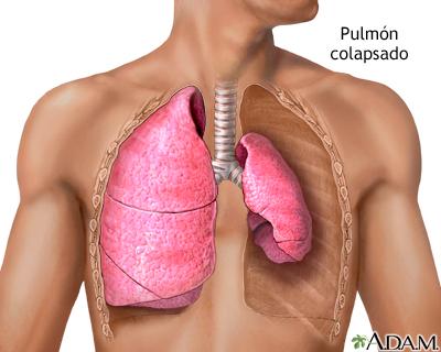 Pulmón colapsado, neumotórax