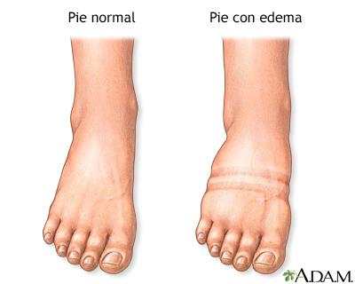 Las venas de la úlcera en los pies el tratamiento