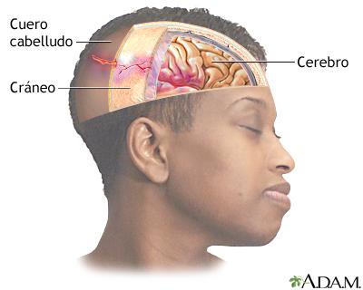 Lesión en la cabeza