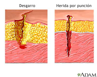 Desgarro versus herida penetrante