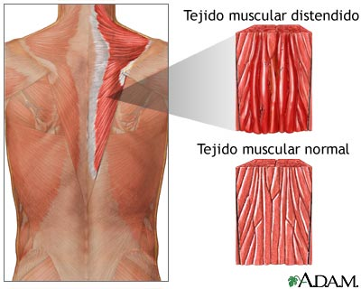 Distensión muscular