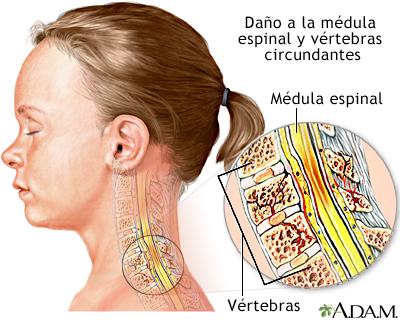 Lesión a la médula espinal