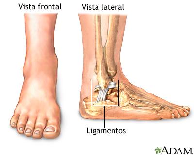Esguince de tobillo - Serie—Anatomía normal: MedlinePlus ...