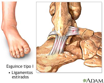 El blog de Francisco Gilo: Esguince de tobillo
