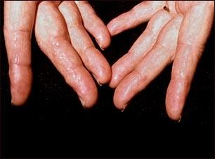 Amiloidosis en los dedos