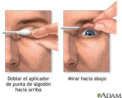 Si el hinchazón del ojo de la alergia