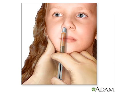 Vacuna contra la gripe en aerosol nasal