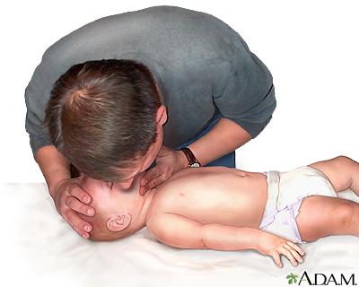 Niño que no respira