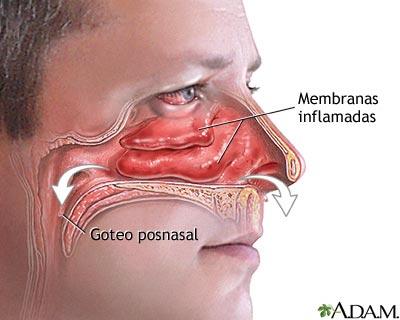 Goteo y congestión nasal
