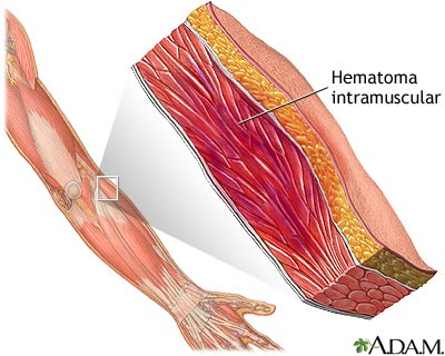 Hematoma muscular
