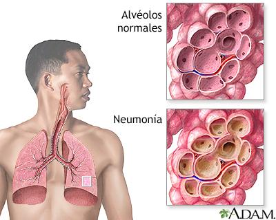 Mascarillas , CO2, Virus, Neumonia – Comparte!